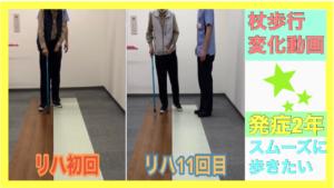 当施設ご利用者様-歩行変化動画